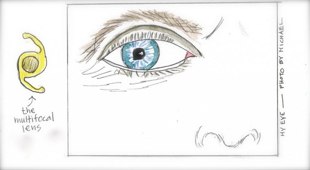my eye001